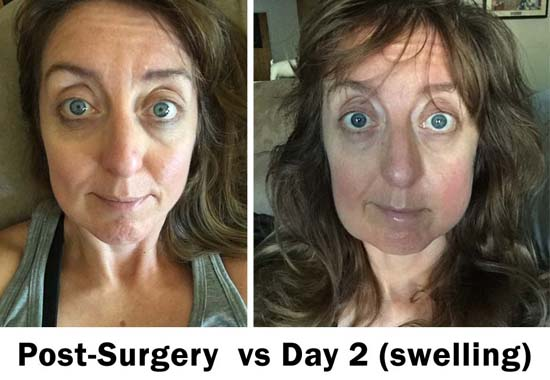 wisdom teeth swelling post surgery vs day 2, 3 & 4