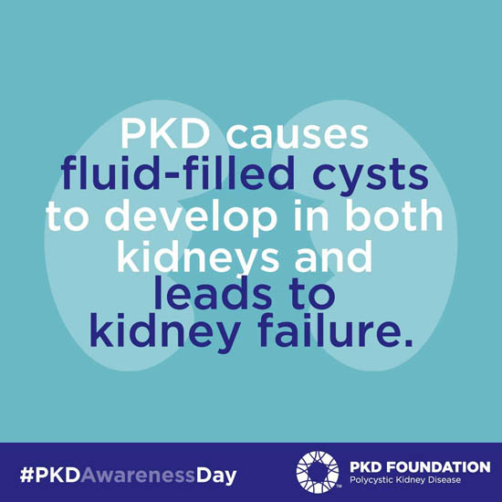 PKD causes fluid-filled cysts to develop in both kidneys and leads to kidney failure.